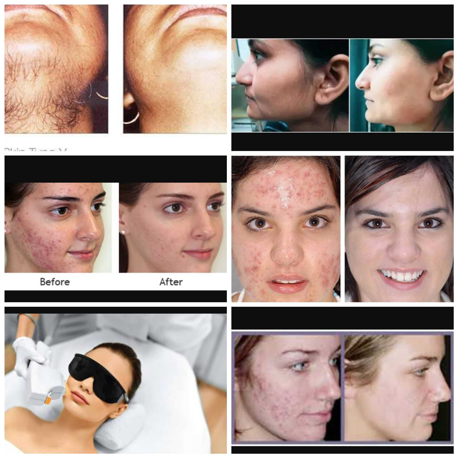 360 Degree Cosmetic Laser Skin Clinic Acupuncture Clinic In