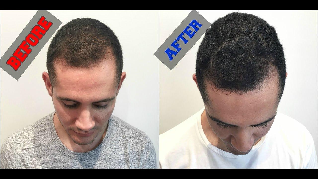 Hair Care Treatments in Cochin, Baldness Cure | Sulekha Cochin