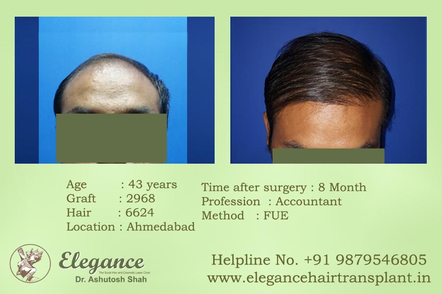 Elegance Hair Transplant & Cosmetic Skin Clinic in Adajan