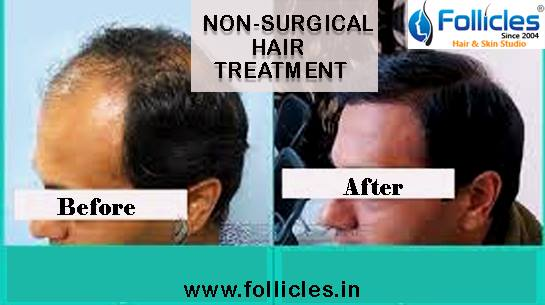 Top 10 Laser Treatment for Skin in Mehdipatnam, Hyderabad